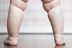 """OMS lanza iniciativa para acabar con obesidad infantil ante su """"preocupante"""" aumento"""
