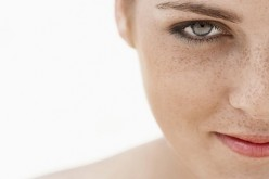 Manchas en la piel: ¿Por qué salen y qué puedo hacer?