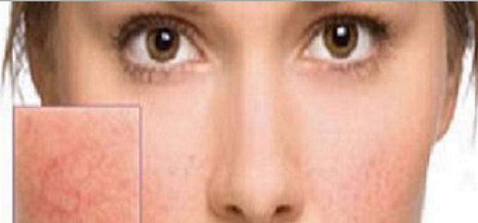¿Venitas rojas en la cara: por qué aparecen y qué son?