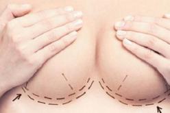 Implantes mamarios: ¿Una tendencia en alza en temporada estival?