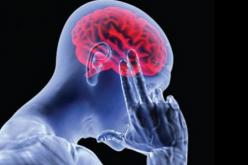 Accidente Cerebro Vascular (ACV) factores de riesgo y cómo detectarlo