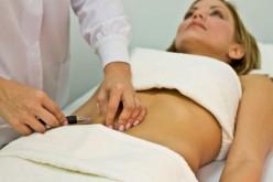 Carboxiterapia, el tratamiento que nos ayuda a mejorar nuestro cuerpo