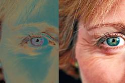 Un trasplante de células madre embrionarias logra regenerar la visión en pacientes con ceguera