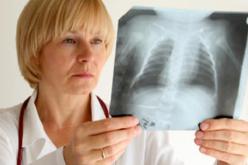 En el día mundial de la tuberculosis te enseñamos a detectarla y apoyar su erradicación