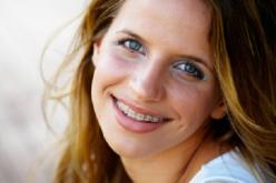 Frenillos en adultos: Nunca es tarde para mejorar la sonrisa