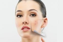 Peeling de ojos y labios: la última revolución para lucir una mirada intensa y labios irresistibles