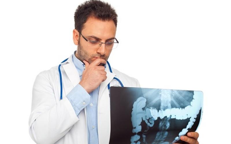 Cáncer de colon: un riesgo latente