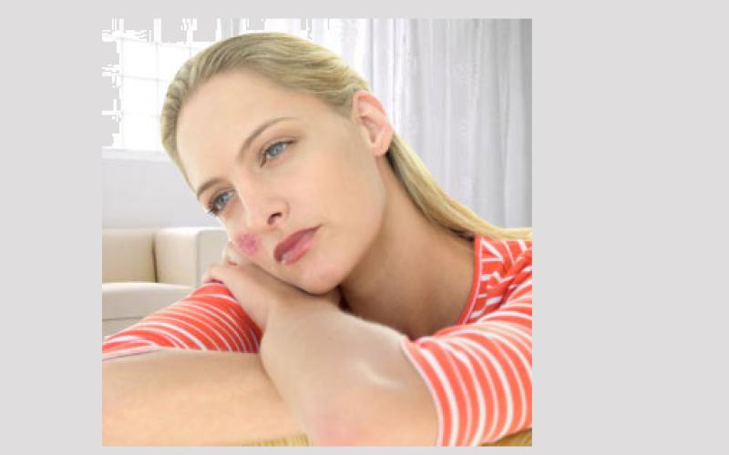 Lupus: El silencioso ataque de nuestro cuerpo