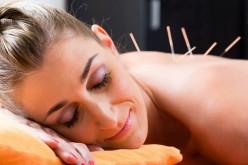 La acupuntura puede ser la solución que buscas para terminar con las alergias