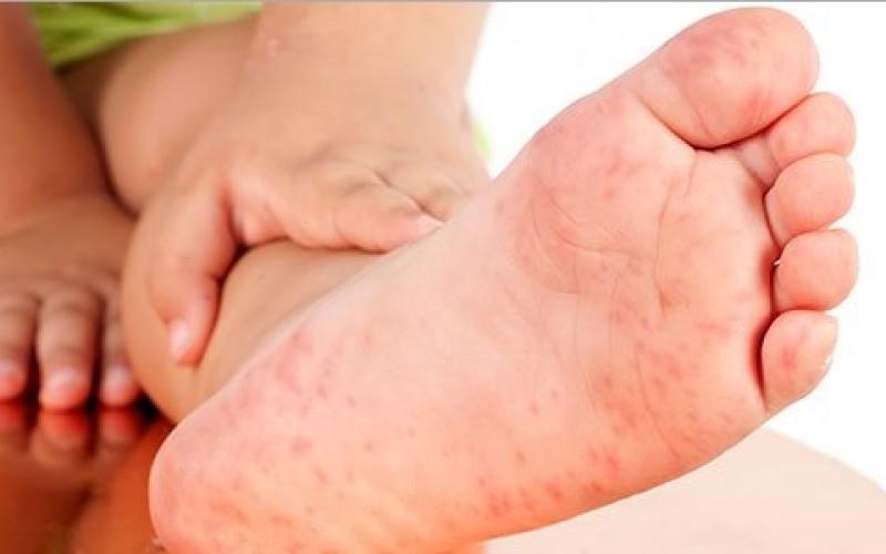 La importancia de reconocer las pestes infantiles a tiempo