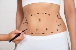 Liposucción: todo lo que hay que saber sobre este procedimiento