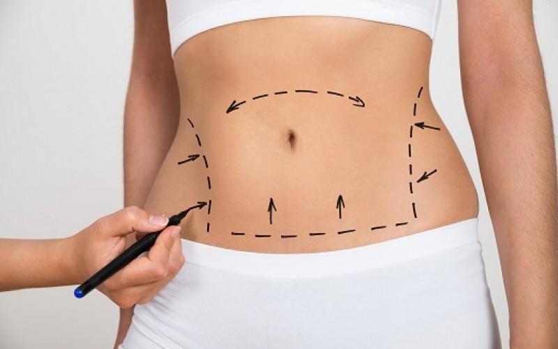 Cirugías plásticas registran considerable aumento durante el verano
