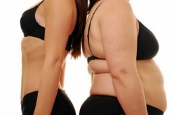 Manga gástrica: una alternativa contra la obesidad