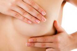 Cáncer de mama: ¿qué es y cómo enfrentarlo?