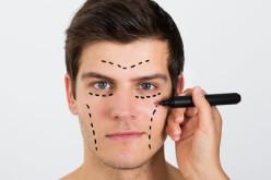 Estudio reveló que hombres chilenos se hacen más cirugías plásticas que en otras partes del mundo